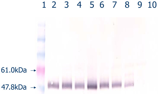 Western blot for γ3 heavy chain (IgG3) in serum from mice bearing zero (-/-), one (+/-), or two (+/+) wild-type (functional) γ3 heavy chain alleles by PCR genotyping assay . Lane 1, markers; 2-6, γ3 +/+; 7-8, γ3 +/-; 9-10, γ3 -/-.