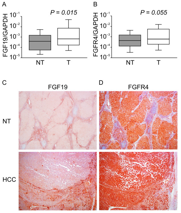 Real-time quantitative RT-PCR analysis, immunohistochemical staining of representative specimens from HCC patients of 40 HCC samples . ( A ): Ratio of average FGF19/GAPDH expression in HCC (T) compared with corresponding noncancerous hepatic tissues (N). The average FGF19/GAPDH level in HCCs. ( B ): The average FGFR4/GAPDH level in HCCs. ( C ): Immunohistochemistry using anti-FGF19 monoclonal antibodies; HCC tissue (lower) and noncancerous hepatocytes (upper). ( D ): Immunohistochemistry using anti-FGFR4 monoclonal antibodies; HCC tissue (lower) and noncancerous tissue (upper). (Original magnifications: ×40 (upper); ×40 (lower)). RT-PCR; reverse transcription polymerase chain reaction; HCC, hepatocellular carcinoma.
