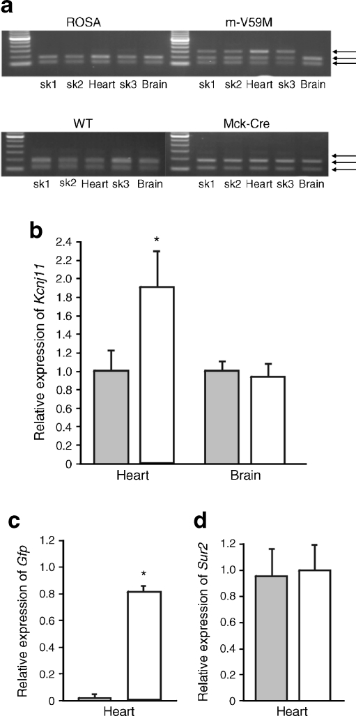 Kcnj11 expression in the heart. a Kcnj11 expression in tissue isolated from ROSA, WT, Mck-Cre and m-V59M mice. WT, but not mutant (V59M), Kcnj11 cDNA is cut by the restriction enzyme BtsCI: the presence of two bands thus indicates the presence of the WT gene only and three bands indicates both WT and mutant genes. Data are representative of experiments on seven ROSA, four m-V59M, four WT and four Mck-Cre mice. sk1, quadriceps muscle; sk2, triceps muscle; sk3, diaphragm. b,c Quantitative PCR showing expression of Kcnj11 in heart and brain ( b ) and Gfp in heart ( c ) of control (grey bars, n = 5) and m-V59M mice (white bars, n = 5), relative to a panel of housekeeping genes. * p