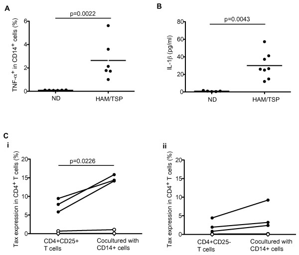 Activated CD14 + cells in patients with HAM/TSP . (A) TNF-α expression in CD14 + cells of NDs and HAM/TSP patients after culture for 24 hours. The data were obtained from six NDs and six HAM/TSP patients. CD14 + cells expressing TNF-α was significantly elevated in HAM/TSP patients, compared to NDs by Mann-Whitney test (p = 0.0022). The horizontal line represents the mean. (B) Detection of IL-1β in PBMC culture supernatants of NDs and HAM/TSP patients after culture for 24 hours. The data were obtained from five NDs and eight HAM/TSP patients. IL-1β expression in HAM/TSP patients was significantly higher in those cells of NDs by Mann-Whitney test (p = 0.0043). The horizontal line represents the mean. (C) Tax expressions in CD4 + CD25 + T cells (i) and CD4 + CD25 - T cells (ii) cocultured with or without autologous CD14 + cells of ACs (n = 2, opened circle) and patients with HAM/TSP (n = 3, closed circle) for 18 hours.