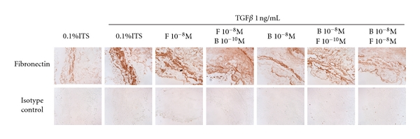 Effect of combined corticosteroids and LABA on TGF β -induced fibronectin in nonasthmatic bronchial rings. Immunohistochemical detection of fibronectin (brown staining) basally or following stimulation with TGF β in the presence or absence of drugs in nonasthmatic tissue sections.