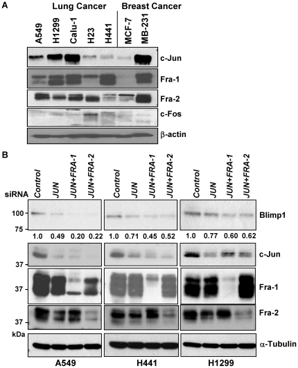 Knockdown of AP-1 subunits decreases Blimp1 expression in lung cancer cells. (A) The immunoblot of nuclear extracts from lung cancer cells in Fig. 1A was stripped and re-probed to assess expression of the AP-1 subunits c-Jun, Fra-1, Fra-2 and c-Fos. (B) A549, H441 and H1299 cells were transfected with 20 nM of JUN siRNA alone or 10 nM of JUN siRNA in combination with 10 nM of FRA-1 or FRA-2 siRNA or with 20 nM of a negative control siRNA (Qiagen) for 24 h. WCE (30 µg) were subjected to immunoblotting for Blimp1, c-Jun, Fra-1, Fra-2 and α-tubulin, as a loading control. The Blimp1 bands were quantified and normalized to α-tubulin expression, and average values from two independent experiments presented relative to control siRNA, set to 1.0.