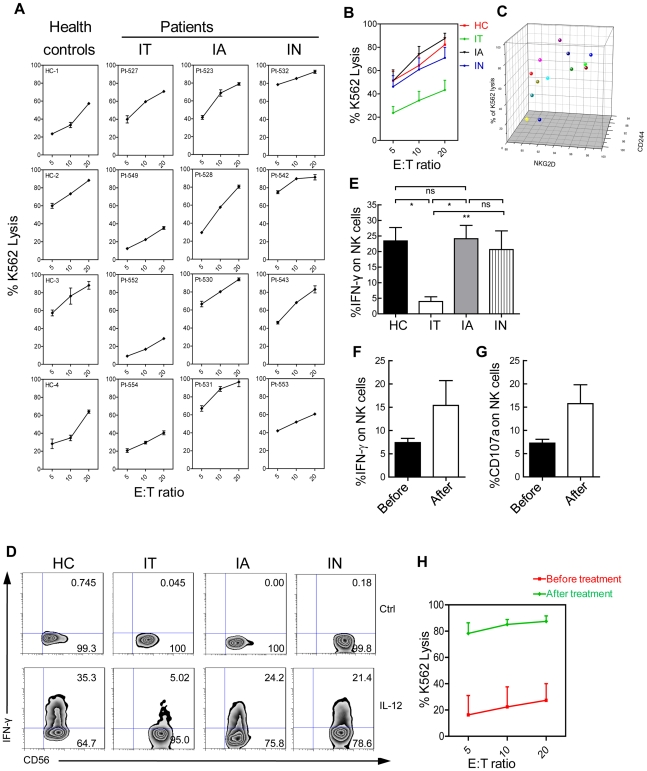 Deficient NK cell function in IT patients. (A) Deficient NK cell cytotoxicity from IT patients. NK cell cytotoxicity was assessed in primary NK cells from IT, IA, and IN patients and healthy controls using a 51 Cr-release assay with K562 target cells. (B) Results show the mean ± SEM values in 19 patients and 5 controls. Values for IT patients were less than controls (P = 0.0384). (C) Positive correlation between NK cell cytotoxicity and the percentage of NK cells expressing NKG2D and 2B4. (D) Fresh PBMCs were stimulated with/without IL-12 as described in the Materials and Methods . After 16 h, IFN-γ production was determined using flow cytometry by gating on CD3 − CD56 + NK cells. A representative dot plot displaying intracellular IFNγ staining in NK cells with the subsets indicated is shown. (E) Cumulative data are shown. (F, G) Fresh PBMCs from patients before treatment (black) or after treatment (white) were stimulated with IL-12 for 16 h. IFNγ (F) and CD107a (G) production was determined using flow cytometry by gating on CD3 − CD56 + NK cells. (H) Induction of ex vivo NK cell cytotoxic activity after in vivo administration of antiviral treatment with nucleoside analogues until ALT reached normal levels. NK cytotoxicity was determined ex vivo by measuring the lysis of 51 Cr-labelled target cells before treatment (red) or after treatment (green). Cumulative data are shown.