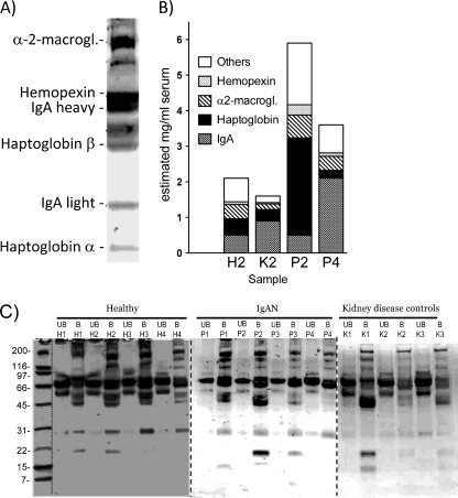 Identification of major galectin-8N binding serum glycoproteins. a SDS-PAGE (4–20% stained with Coomassie) of galectin-8N bound glycoproteins with major proteins indicated as previously identified by Western blot and MALDI-TOF-MS [ 25 ]. b Estimated relative amounts of galectin-8N bound serum proteins in four samples by LC–MS/MS analysis of pooled tryptic peptides. The serum concentrations of galectin-8N bound total protein and IgA were determined by protein assay and nephelometry as given in Table S I . The relative amounts of the remaining galectin-8N bound proteins were determined by LC–MS/MS assuming a linear relationship between sample protein concentration and the summed abundances for the peptides uniquely mapping to each protein (Tables S II and S III ). c SDS-PAGE of galectin-8N unbound ( UB ) and bound ( B ) fractions with the highest protein concentrations from four healthy individuals, four IgAN patients, and three controls with other histological patterns of glomerulonephritis. Indicated to the left are the mobilities of known size markers. The major visible bands of the unbound fractions correspond to albumin (at 67 kDa), transferrin (above the albumin), and IgG heavy chain (below the albumin)