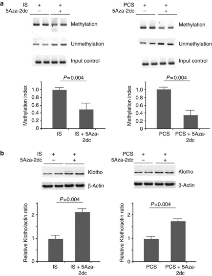 DNA methyltransferase 1 (DNMT 1) inhibitor demethylated the Klotho gene and increased Klotho expression in vivo . ( a ) Methylation-specific PCR (MSP) with mouse Klotho set 1 primers showed that simultaneous treatment with 5-aza-2′-deoxycytidine (5Aza-2dc) in indoxyl sulfate (IS)- and p -cresyl sulfate (PCS)-injected mice significantly demethylated the Klotho gene. ( b ) Western blotting showed that 5Aza-2dc significantly increased the Klotho expression in IS- and PCS-injected mice.