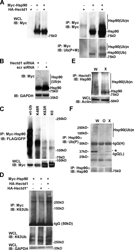 Hectd1 is required for K63-linked Ub n of Hsp90. (A–D) HEK293T cells were transfected, and lysates were subjected to immunoprecipitation and Western blot analysis as indicated. (A) Ubiquitination of Myc-Hsp90 increases with expression of HA-Hectd1 ( n = 2). (B) siRNA-mediated knockdown of endogenous Hectd1 reduces the accumulation of HMW-Hsp90α ( n = 2). (C) Hsp90α ubiquitination utilizes K63 linkages. (D) Hectd1-dependent polyubiquitination of Hsp90 occurs primarily through K63 linkages. (E) HMW Hsp90 species are reduced in Hectd1 mutant heads. E12.5 Hectd1 W (W) and Hectd1 X (X) embryos were cultured in the presence of 10 µM MG132 for 3 h before lysis and immunoprecipitation of Hectd1. Immunoprecipitates were subjected to Western blot analyses to detect Hsp90 that coimmunoprecipitated with Hectd1. (F) Hsp90 ubiquitination is reduced in CM cultures from Hectd1 O (O) and Hectd1 X (X) mutants compared with Hectd1 W (W). Hsp90 was immunoprecipitated from E12.5 CM primary cultures in highly denaturing ubiquitination buffer plus 5% SDS and subjected to Western blot analyses as indicated. The appearance of a 30-kD ubiquitinated protein (asterisk) is reduced in Hectd1 mutant cells. All data are representative of three independent experiments unless otherwise indicated. Abbreviations: W, Hectd1 +/+ ; O, Hectd1 opm/opm ; X, Hectd1 X/X ; WCL, whole cell lysate; IB, immunoblot; IP, immunoprecipitation; (Ub)n, Ub n ; wt-Ub, wild-type Ub; K48R, mutant Ub lysine 48 arginine; K63R, mutant Ub lysine 48 arginine; K0, lysineless Ub.