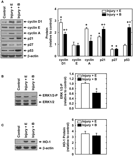 Effect of bilirubin on the expression or phosphorylation of cell cycle regulatory proteins, ERK1/2, or HO-1 following rat carotid artery balloon injury . (A) Expression of cyclin D1, cyclin E, cyclin A, p21, p27, p53, and β-actin protein in control and injured arteries treated with an empty (E) gel or a gel containing bilirubin (B) 2 days after injury. (B) Expression of phospho-ERK1/2 and total ERK1/2 in control and injured arteries treated with an empty (E) gel or a gel containing bilirubin (B) 2 days after injury. (C) Expression of HO-1 in control and injured arteries treated with an empty (E) gel or a gel containing bilirubin (B) 2 days after injury. Quantification of relative protein levels was achieved by scanning densitometry. Results are means ± SEM ( n = 3–5). *Statistically significant effect of arterial injury. + Statistically significant effect of bilirubin.