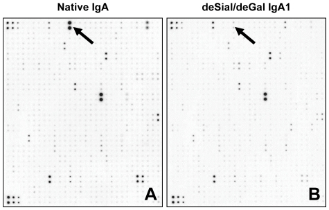 Cytokine array analysis after stimulation of cultured human mesangial cells (HMCs) with native IgA or deSial/deGal IgA1. The HMCs were stimulated with native (A) or deSial/deGal IgA1 (50 µg/ml) (B) for 48 h. The culture supernatants were then applied for a protein array analysis. After incubation of samples with array membranes for 2 h at room temperature, the spots on the membranes were scanned and digitized. The signal intensities of the spots obtained from two separate experiments were analyzed. (The proteins that were up- or downregulated by approximately 2 fold are summarized in Tables 1 and 2 .) The spots shown by arrows correspond to adiponectin. The intensity of the spots in the membrane stimulated with native IgA was higher than that of cells stimulated with deSial/deGal IgA1 in HMC (A, B).