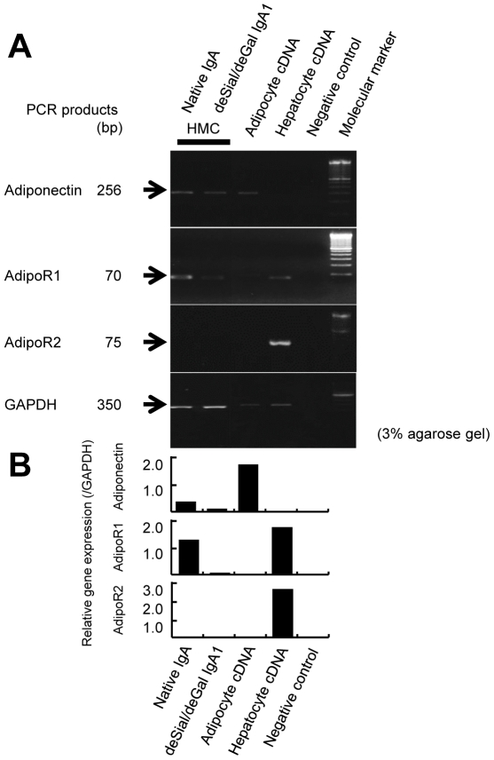 The expression of adiponectin, AdipoR1 and AdipoR2 genes in cultured human mesangial cells (HMCs). (A) The cDNA from human adipocytes was utilized as a positive control for adiponectin and the cDNA from human hepatocytes was used as a control for AdipoR1 and AdipoR2. RT-PCR for adiponectin in HMCs after stimulation with either native or deSial/deGal IgA1 afforded cDNA bands of the same size (256 bp) as that amplified from human adipocyte cDNA. RT-PCR for AdipoR1 in HMCs afforded cDNA bands of the same size (70 bp) as that amplified from human hepatocytes. The HMCs did not express AdipoR2 mRNA. The expression of the GAPDH gene was used as an internal standard (350 bp). (B) The densitometric analysis of the expression of each cDNA.