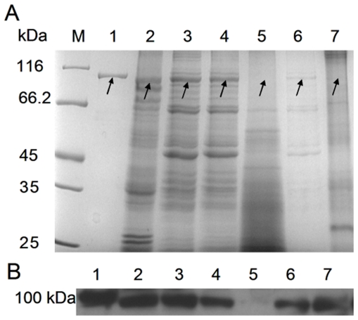 Identification of Cs Pmy by SDS-PAGE and Western blot analysis. Protein molecular weight marker (M), purified pET-26b- Cs Pmy protein (lane 1), TWE of adult worm (lane 2), TWE of metacercaria (lane 3), TWE of cercaria (lane 4), TWE of egg (lane 5), cyst wall proteins of metacercaria (lane 6), and soluble tegumental components of adult worm (lane 7). (A) 8% SDS-PAGE. (B) Western blot analysis. Corresponding proteins were subjected to 8% SDS-PAGE and immobilized onto the membrane, then the membrane was incubated with anti-pET-26b- Cs Pmy rat serum (1∶2000 dilutions) at room temperature for 2 h. Subsequently, the membrane was followed by incubation with rabbit anti-rat IgG HRP-conjugated secondary antibody (1∶2000 dilutions) at room temperature for 1 h. 2 µg of purified pET-26b- Cs Pmy protein and 10 µg of TWE were loaded per lane. SDS-PAGE was visualized by Coomassie Blues staining and the protein bands that might be native paramyosin in different life stages were indicated with arrows. Western blot was visualized by ECL method, the detected protein bands were around 100 kDa.