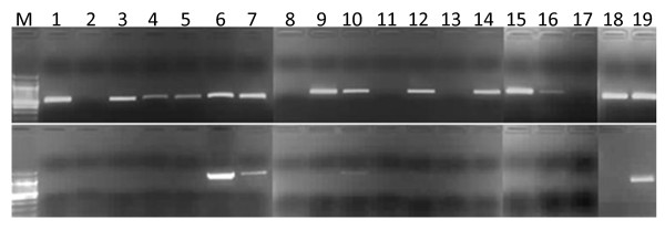 Screening for tolerance to an AT-rich template using conventional PCR amplification . Top panel: PCR amplification of a 540 bp locus (Pf3D7_11:1294982-1295521) with a relatively balanced (70% AT) base composition (positive control) in the presence or absence of TMAC. Bottom panel: PCR amplification of a 1217 bp locus (Pf3D7_01:55900-57116) with extreme AT content (84%) in the presence or absence of TMAC. M, 100 bp DNA ladder (NEB); (1) PWO master; (2) PWO master + TMAC; (3) PfuULTRA; (4) PfuULTRA + TMAC; (5) Kapa HiFi; (6) Kapa HiFi + TMAC; (7) AccuPrime Taq HiFi; (8) AccuPrime Taq HiFi + TMAC; (9) AccuPrime pfx SuperMix; (10) Phusion; (11) Phusion +TMAC; (12) Platinum HiFi; (13) Platinum HiFi + TMAC; (14) Platinum pfx; (15) Platinum pfx + TMAC, (16) Ex Taq; (17) Ex Taq + TMAC; (18) Kapa2G Robust; (19) Kapa2G Robust + TMAC.