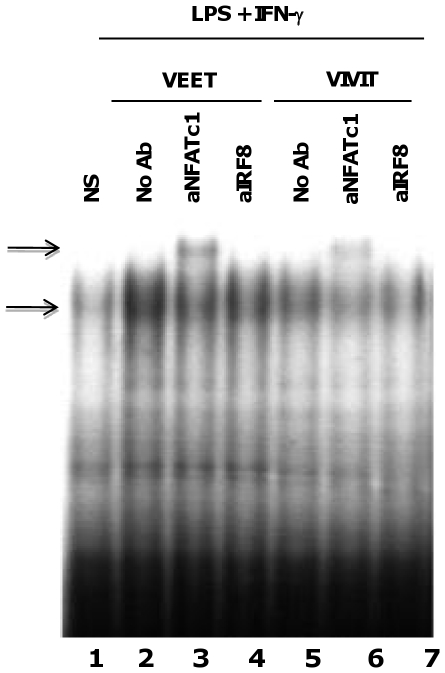 11R-VIVIT reduces DNA binding to the NFAT/IRF8 site in the murine IL-12 p40 promoter. BMDMs were either untreated (lane 1) or pretreated with the indicated concentrations of 11R-VEET (lanes 2–4) or 11R-VIVIT (lanes 5–7) for 1 h. Cells were then treated for 1 h with IFN-γ (10 ng/ml) prior to LPS (100 ng/ml) stimulation for 4 h. Cells were harvested and nuclear extracts were prepared for EMSA. 32 P labeled oligonucleotide probe spanning the NFAT/IRF8 site of the IL-12 p40 promoter [10] was incubated with 10 mg of nuclear extracts on ice for 30 min prior to electrophoresis. For supershift assays (lanes 3,4 and 6,7), 10 mg nuclear extract were incubated with 3 mg of anti-NFAT c1 (lanes 3 and 6) or anti-IRF8 (lanes 4 and 7) antibodies for 30 min on ice prior to addition of the 32 P labeled probe and 30 min incubation on ice followed by electrophoresis. The arrows represent DNA-protein complexes formed before and after incubation with the indicated antibodies. The above result is representative of five independent experiments.