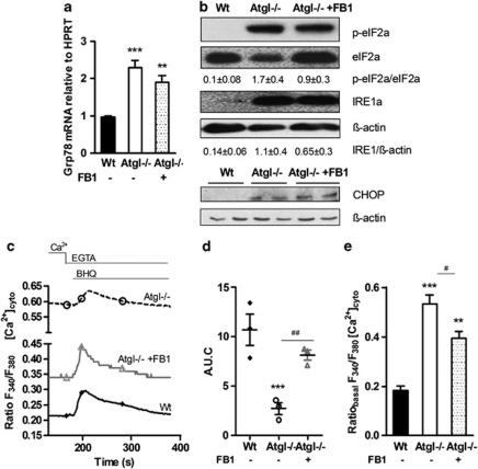 Persistent ER stress after inhibiting ceramide synthesis in Atgl–/– macrophages. ( a ) mRNA expression of Grp78/BiP in Wt, Atgl–/– and FB1-treated Atgl–/– macrophages, including normalization to hypoxanthine-guanine phosphoribosyltransferase (HPRT), was determined by real-time PCR. ** P ≤0.01, *** P ≤0.001. ( b ) Cytosolic fractions of macrophages were isolated and proteins were resolved by SDS-PAGE. Protein expression was determined using specific antibodies for phosphorylated (p)eIF2 α , eIF2 α , and IRE1 α by western blotting. Data are expressed as the ratios of eIF2 α /eIF2 α and IRE1 α / β -actin of two independent experiments±S.E.M. CHOP protein expression was analyzed in whole cell lysates. The expression of β -actin was determined as loading control. ( c ) Wt, Atgl–/– and FB1-treated Atgl–/– macrophages were plated on coverslips in DMEM/10% LPDS. The fura-2 fluorescence ratio (340/380 nm) was determined in single macrophages before and after the addition of BHQ (15 mM) in the presence of 1 mM EGTA. Data are presented as mean values±S.E.M. of 300 cells per genotype of three independent experiments. ( d ) Area under the curve after the addition of BHQ was calculated. Dots represent means of 300 cells of three independent experiments±S.E.M. *** P ≤0.001; ## P ≤0.01. ( e ) Basal cytosolic Ca 2+ concentrations were calculated from the fura-2 fluorescence ratios (340/380 nm) during the initial 5 min. ** P ≤0.01, *** P ≤0.001; # P