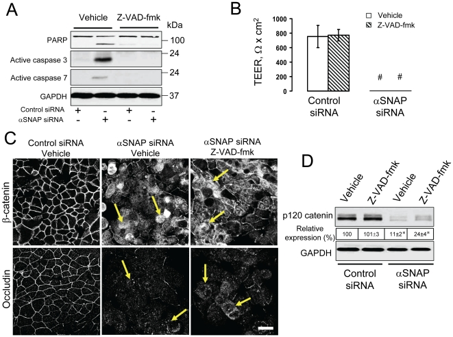 Disruption of apical junctions and downregulation of p120 catenin expression in αSNAP-depleted cells are not mediated by apoptosis. ( A ) Immunoblotting analysis of cleaved PARP and active caspases 3 7 shows that αSNAP depletion causes significant cell apoptosis in SK-CO15 cells on day 4 post-transfection, which is prevented by inhibition of caspases with Z-VAD-fmk (50 µM). ( B–D ) To examine the role of apoptosis in junction disassembly, SK-CO15 cells were transfected with either control or αSNAP-specific siRNA (duplex 1), and one day later, were exposed to either vehicle or Z-VAD-fmk (50 µM) for 72 h. Inhibition of apoptosis does not prevent disruption of the paracellular barrier ( B ), disruption of AJs and TJs ( C , arrows) or down-regulation of p120 catenin expression ( D ) in αSNAP-depleted epithelial cells; *p