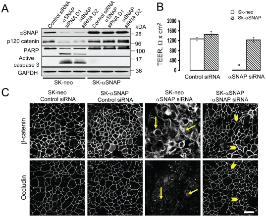 Junctional disassembly and apoptosis in αSNAP-depleted cells can be rescued by expression of siRNA-resistant bovine αSNAP. ( A ) Immunoblotting analysis shows preserved αSNAP level in SK-CO15 cells with stable expression of bovine αSNAP (SK-αSNAP) after siRNA depletion of endogenous human protein. Comparing to the control cells (SK-neo), such bovine αSNAP overexpression completely prevents induction of apoptosis ( A ), disruption of the paracellular barrier ( B ) and AJ/TJ disassembly ( C, arrowheads ) caused by loss of endogenous αSNAP; # p