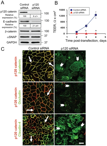 Downregulation of p120 catenin expression phenocopies the effects of αSNAP depletion on epithelial junctions. ( A ) Immunoblotting analysis shows that p120 catenin-specific siRNA dramatically decreases p120-catenin and E-cadherin protein expression in SK-CO15 cells. ( B ) TEER measurements demonstrate that p120 catenin-depleted SK-CO15 cell monolayers do not develop the paracellular barrier on days 2–4 post-transfection. ( C ) Immunofluorescence labeling shows formation of normal β-catenin-based AJs and occludin/claudin-4-based TJs (arrows) in control SK-CO15 cell monolayers. In contrast, p120 catenin-depleted cells display a defective AJ/TJ assembly and intracellular localization of junctional proteins (arrowheads) on day 4 post-transfection; *p