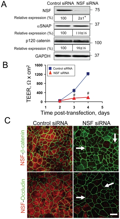 Downregulation of NSF does not phenocopy the major effects of αSNAP knockdown on epithelial junctions. ( A ) Immunoblotting analysis shows that NSF-specific siRNA efficiently decreases expression of the targeted protein without affecting αSNAP and p120 catenin protein levels. ( B ) TEER measurements demonstrate that NSF-depletion significantly attenuates formation of the paracellular barrier in SK-CO15 cell monolayers; *p