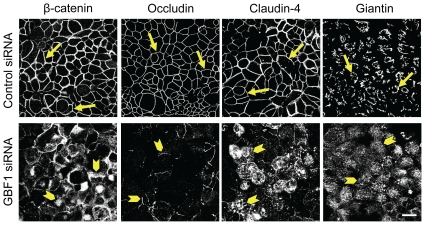 Downregulation of GBF1 expression phenocopies the effects of αSNAP depletion on epithelial junctions. Immunofluorescence labeling shows formation of normal β-catenin-based AJs, occludin/claudin-4-based TJs and well-organized perinuclear Golgi ribbon (arrows) in control SK-CO15 cell monolayers. In contrast, GBF1-depleted cells display a defective AJ/TJ assembly, intracellular localization of junctional proteins and dispersed Golgi (arrowheads) on day 4 post-transfection. Scale bar, 20 µm.