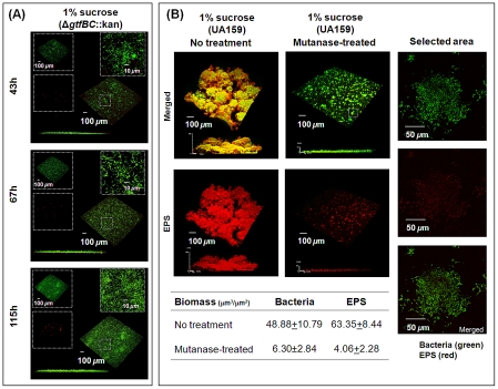 Mixed-species biofilms formed with S. mutans Δ gtfBC ::kan or with parental strain UA159 treated with mutanase. The biofilms were formed in the presence of the gtfBC null mutant (A) or parental strain UA159 (B) with 1% (w/v) sucrose. Selected areas in ( A ) and ( B ) show detailed views of separated and merged confocal images of bacterial cells (green) and EPS (red). The biomass values of EPS and bacterial cells in the biofilms were calculated using COMSTAT. The data shown are mean values ± s.d. (n = 15).
