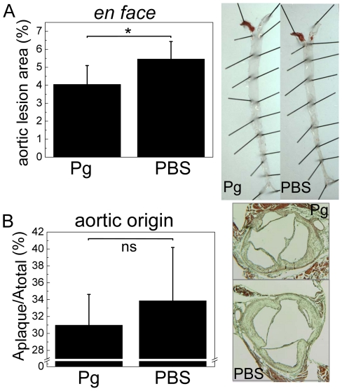 Quantification of atherosclerosis in LDLR −/− mice immunized with P. gingivalis . LDLR −/− mice (n = 7) were immunized without adjuvant with killed P. gingivalis (3 strains mixed) (Pg) followed by high fat diet (HFD). Controls (PBS, n = 8) received PBS. A) The extent of atherosclerotic plaque development was determined after HFD by en face analysis of the Sudan IV -stained aortas. B) Lesions at the aortic origin were measured on histological sections as percentage of plaque area in the aorta cross-sectional area. Representative pictures of aortas and cross-sections are shown for each group. * P