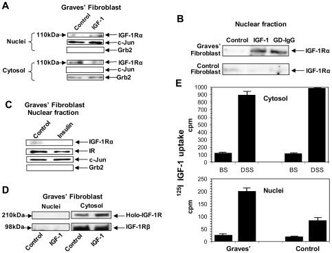"""IGF-1R protein differentially accumulates in the nuclei of TAO orbital fibroblasts and derives from the fibroblast surface. ( A ) Western blot analysis of nuclear and cytoplasmic IGF-1Rα in GD orbital fibroblasts before and following IGF-1 (10 nM) treatment for 16 h. Cells were subjected to subcellular fractionation as described in """" Methods """" and membranes were probed with anti-IGF-1Rα, stripped, and re-probed with anti-Grb2 (cytoplasmic) and anti-c-Jun (nuclear) Abs. ( B ) Nuclear IGF-1Rα content in GD and control orbital fibroblasts before or following treatment with either IGF-1 (10 nM) or GD-IgG (15 µg/ml) for 16 hours. ( C ) Insulin fails to alter the nuclear content of IR or IGF-1Rα in GD orbital fibroblasts. Cells were treated with nothing or insulin (15 µg/ml) for 16 hrs. They were subjected to subcellular fractionation and Western blot analysis. ( D ) IGF-1Rβ (98 kDa) and the intact receptor (200 kDa) are undetectable in the nucleus under basal and IGF-1-treated conditions. ( E ) Control and GD fibroblasts were subjected to 125 I-IGF-1 cross-linking with either the cell-impermeable agent, BS, or the cell permeable agent, DSS. They were then treated with IGF-1. Nuclei were separated as described in """" Methods """" and subjected to quantification of radioactivity. Results are representative of three experiments performed."""