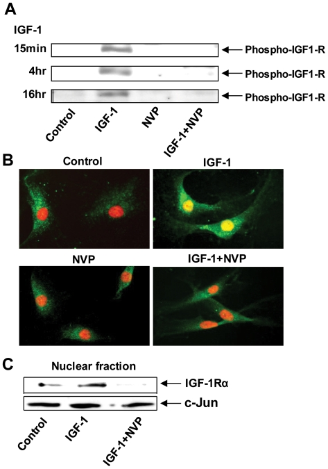 IGF-1Rβ phosphorylation may play an essential role in the nuclear translocation of IGF-1Rα in GD orbital fibroblasts. ( A ) NVP-AEW-541, a specific tyrosine kinase inhibitor blocks IGF-1R phosphorylation ( B ) NVP-AEW-541 blocks nuclear IGF-1Rα accumulation. GD orbital fibroblasts were treated as indicated and stained with anti-IGF-1Rα Ab (green) and counterstained with PI. ( C ) Western blot analysis of nuclear proteins from GD orbital fibroblasts treated with nothing, IGF-1, NVP-AEW-541, or the combination and probed with anti- IGF-1Rα and anti-c-jun Abs. The findings are representative of three experiments performed.