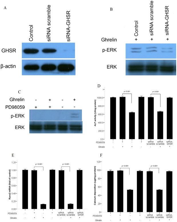 ERK signaling pathway mediated the inhibitory effect of ghrelin on osteoblastic differentiation of calcifying vascular smooth muscle cells (CVSMCs). (A) The expression and silencing of growth hormone secretagog receptor (GHSR) on CVSMCs. Cells were incubated with scramble siRNA or GHSR siRNA for 72 h. Total cellular protein was subjected to western blot analysis using anti-GHSR antibody. The anti-GHSR antibody identified a band at 44 kDa. β-actin was used as the control. (B) The activation of extracellular signal-related kinase (ERK) under the silencing of GHSR. Cells were incubated with scramble siRNA or GHSR siRNA for 72 h prior to treatment with 10−6 mol/L ghrelin for 30 min. Total proteins were subjected to western blotting and incubated with antibody against p-ERK and ERK. The representative results are shown. (C) The activation of ERK under PD98059. Cells were incubated with PD98059 (10 µM) for 2 h prior to treatment with 10−6 mol/L of ghrelin for 30 min. Total proteins were subjected to western blotting and incubated with antibody against p-ERK and ERK. The representative results are shown. (D, E, F) The decreased alkaline phosphatase (ALP) activity, Runx2 mRNA, and calcium deposition mediated by the GHSR/ERK pathway. Cells were incubated with PD98059 (10 µM) for 2 h prior to treatment with 10−6 mol/L of ghrelin. Cells were also treated with the scramble siRNA or GHSR siRNA in the presence of 10−6 mol/L of ghrelin. ALP activity, Rnux2 mRNA, and calcium deposition were measured. The bars represent the mean ±standard deviation (SD) ( n = 3).