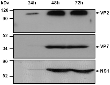 Expression of VP2, VP7, and NS1 proteins in High five cells infected with rBAC-VP2, rBAC-VP7, or rBAC-NS1. High five cells were infected with rBAC-VP2, rBAC-VP7, or rBAC-NS1 and the expression of the proteins was analysed at 24, 48 and 72 hours by western blot using a mouse polyclonal antibody against BTV-4. The position of the three proteins is indicated by an arrow.