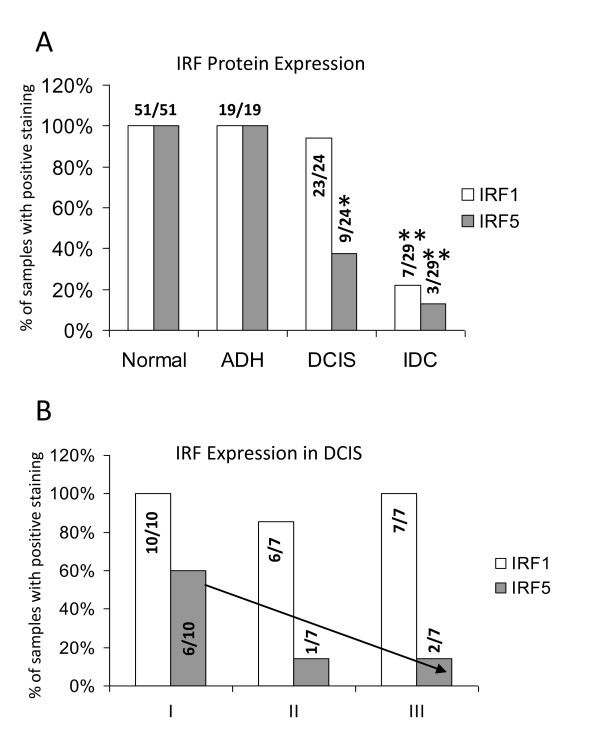 Summary of IRF expression in breast tissue specimens . A . Percent of samples with positive staining is shown on y-axis, tissue and disease type are shown on x-axis. Number of samples positive for IRF1 or IRF5 is shown over total number of patient samples examined in each group. Statistical significance was determined by comparing the number of positive-stained samples in each disease type to positive-stained samples in normal tissues; * denotes P