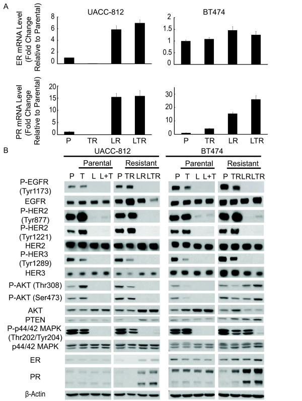 Trastuzumab resistant cells maintain HER signaling. Lapatinib and combination resistant cells express up-regulated ER activity . (A) qRT-PCR expression levels of ER and PR mRNA in UACC-812 and BT474 parental and distinct resistant clones. Data were normalized to parental cells. (B) UACC-812 and BT474 parental cells were treated with trastuzumab (10 μg/ml), lapatinib (1 μM), or trastuzumab plus lapatinib for five hours and harvested. Whole-cell extracts of these treatment groups and resistant derivatives were analyzed by Western blot with the indicated antibodies.