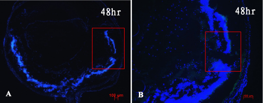 Immunofluorescence analysis showed no cluster of differentiation (CD)3+ labeled T cells, F4/80+ labeled macrophages, or CD56+ labeled natural killer (NK) cells involved in dispase-injected eyes at 48 h time point ( A , B ). Bluish cells stained with Hoechst 33342 (scale bar 100 μm).