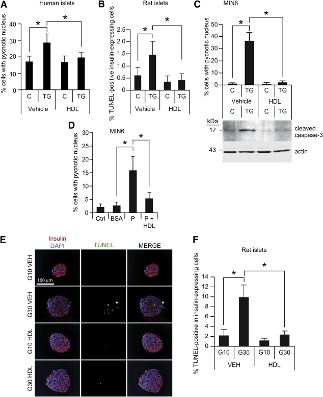 HDLs protect β-cells against apoptosis induced by ER stress. A : Human islets from cadaveric donors were dissociated using trypsin and plated. The next day, islets were treated (TG) or not (control [C]) with 10 μmol/L TG in the presence (HDL) or in the absence (vehicle [VEH]) of HDLs for 24 h. Cells were then fixed, and apoptosis was assessed by scoring pycnotic nucleus. B : Cultured rat islets were incubated 24 h in serum-free RPMI 1640 medium containing 5 g/L BSA and 10 mmol/L glucose with the indicated combinations of 1 μmol/L TG and 1 mmol/L HDLs. Cell death was determined by transferase-mediated dUTP nick-end labeling (TUNEL) in insulin-expressing cells on histological sections of the islets. Results are expressed as the percentage of apoptotic cells among insulin-positive cells in a given islet section. A minimum of 2,000 cells from at least 20 islets have been scored from two independent experiments. C : MIN6 cells were treated with 0.5 μmol/L TG in the presence or in the absence of 1 mmol/L HDLs for 24 h. Cells were then fixed, and apoptosis was determined. Alternatively, the cells were lysed and the extent of caspase-3 activation was assessed by Western blotting using an antibody recognizing the cleaved active form of the protease. An actin-specific antibody was also used on the same blot to assess the evenness of loading. D : MIN6 cells were left untreated (control [Ctrl]) or treated for 48 h with 0.3% BSA (BSA) or 0.3% BSA/0.4 mmol/L palmitate (P) in the presence or in the absence of 1 mmol/L HDLs. Apoptosis was then scored as in A . E and F : Cultured rat islets were incubated for a week in serum-free RPMI 1640 medium containing 5 g/L BSA and 10 or 30 mmol/L glucose (labeled G10 and G30 in the figure) in the presence (HDL) or in the absence (vehicle [VEH]) of 1 mmol/L HDLs. Apoptosis was then assessed as in B . E : representative examples of TUNEL staining (green staining) in insulin-positive cells (red staining; nuclei are stained in blue with DAPI). Th