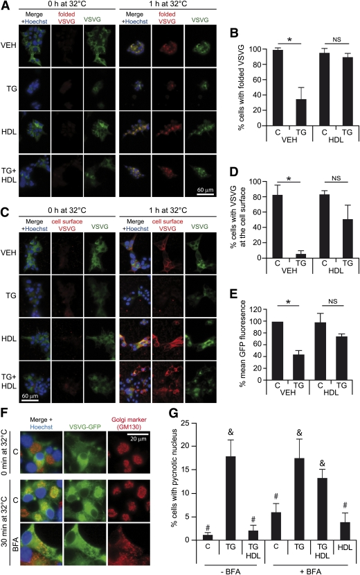 HDL-mediated β-cell protection against TG-induced apoptosis is inhibited by BFA. A and B : MIN6 cells were infected with VSVG-GFP-encoding lentiviruses and treated 2 days later with or without 0.5 μmol/L TG in the presence or in the absence of 1 mmol/L HDLs for 5 h at 40°C. The cells were then incubated or not for an additional 1-h time period at 32°C. The presence of folded VSVG was assessed by immunocytochemistry on permeabilized cells using an antibody specifically recognizing the correctly folded form of the protein. The percentage of cells expressing folded VSVG was quantitated and shown in B . C – E : Cells were treated as in A except that nonpermeabilized cells were labeled with an antibody directed against the ectopic part of VSVG. The percentage of cells expressing VSVG at the cell surface was quantitated and shown in D . Quantification of the GFP fluorescence intensity in VSVG-GFP expressing cells is presented in E . F and G : MIN6 cells infected with VSVG-GFP-encoding lentiviruses were preincubated or not with 250 ng/mL BFA for 2 h before being subjected to the indicated combinations of 0.5 μmol/L TG and 1 mmol/L HDLs for an additional 22-h period. Permeabilized cells were then stained with an antibody recognizing GM130, a specific Golgi marker ( F ). Alternatively, apoptosis was assessed by scoring cells with pycnotic and/or fragmented nucleus ( G ). Means with different symbol (# or ) are significantly different. Nuclei were stained in blue with the Hoechst 33342 dye. *Significant differences. NS, no significant differences. VEH, vehicle; C, control. (A high-quality digital representation of this figure is available in the online issue.)