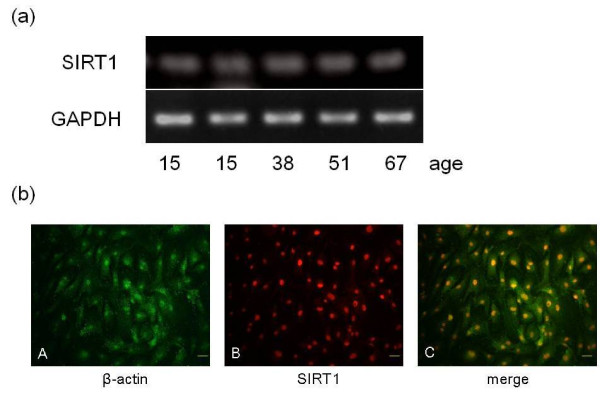 SIRT1 mRNA and protein expression in nucleus pulposus cells . (a) Silent mating type information regulator 2 homolog 1 ( SIRT1 ) mRNA expression in human nucleus pulposus (NP) cells. Results of RT-PCR on NP cells derived from disc tissues of patients with lumbar spinal stenosis, lumbar disc herniation and idiopathic scoliosis are shown. (b) SIRT1 protein distribution in NP cells. Immunohistochemical staining of NP cells for β-actin (A) and SIRT1 (B) (images are merged in C ). Bars = 15 μm. GAPDH, glyceraldehyde 3-phosphate dehydrogenase.
