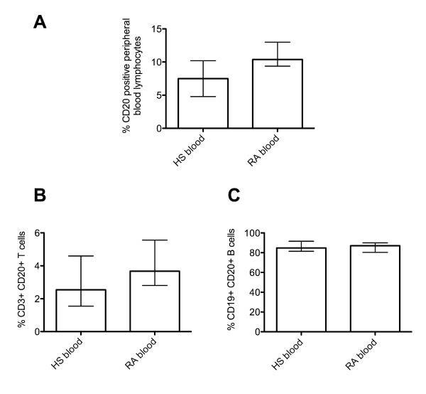 Expression of CD20 on B and T lymphocytes from the peripheral blood of healthy subjects (HS) compared with rheumatoid arthritis (RA) patients, as obtained by flow cytometry . (A) The percentage of CD20 + peripheral blood lymphocytes in HS and RA patients. (B) The percentage CD3 + CD20 + T cells in HS and RA patients. (C) The percentage of CD19 + CD20 + B cells in HS and RA patients as analyzed by flow cytometry. The bars represent the median percentage and interquartile range. The expression patterns of CD20 + cells represent data from 11 HS and 8 RA blood samples in total.