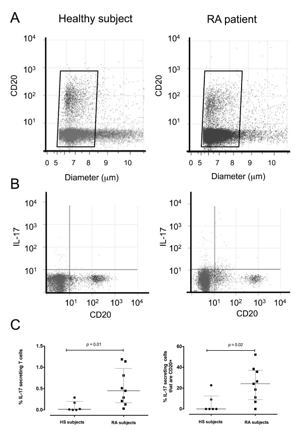 CD20 + , IL-17-secreting, and IL-17-secreting/CD20 + lymphocytes in healthy subjects (HS) and rheumatoid arthritis (RA) patients . (A) Dot plot of size versus CD20 positivity in representative peripheral blood lymphocyte (PBL) samples from an HS and an RA patient. (B) Typical flow cytometry dot plots showing the proportion of CD20 + and IL-17-secreting lymphocytes in representative PBL samples from an HS (left panel) and an RA patient (right panel). Each dot plot shows the proportion of CD20 + cells (lower right quadrant), IL-17-secreting cells (upper left quadrant), and IL-17-secreting CD20 + cells (upper right quadrant). (C) The proportion of PBLs that were IL-17-secreting in HS ( n = 6) and RA subjects ( n = 9, left panel) and the proportion of IL-17-secreting cells that were specifically CD20 + T cells (right panel). The horizontal bars represent the median percentage and interquartile range of each group. IL, interleukin.