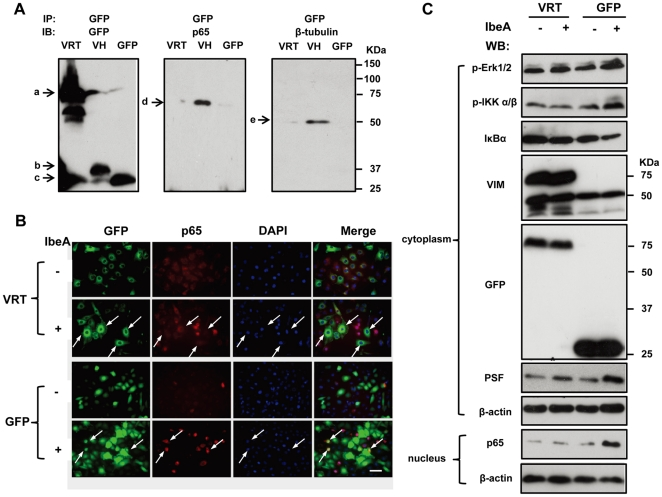 Effects of vimentin head domain deletion on IbeA-induced NF-κB activation and interaction with β-tubulin. ( A ) The cytoplasmic fractions of the GFP–VRT, GFP-VH and GFP transductants were extracted and immunoprecipitated (IP) using the mouse anti-GFP antibody as described in Materials and Methods . The GFP-IP complexes were subjected to Western blotting using the rabbit polyclonal antibodies against GFP, NF-κB (P65), and β-tubulin. Band a, GFP–VRT (72 kDa); band b, GFP-VH (37 kDa); band c, GFP (27 kDa); band d, NF-κB (P65), (65 kDa); and band e, β-tubulin, (50 kDa). ( B ) Immunofluorescence images of the GFP–VRT and GFP transductants incubated with or without the IbeA protein (0.1 µg/ml) for 2 h. The cells were double-stained with the rabbit antibody against NF-κB (p65) conjugated to rhodamine (red), and DAPI (blue). Arrows indicate cells with NF-κB (P65) translocation to the nucleus, which was increased in the GFP transductants and reduced in GFP-VRT-transduced HBMECs upon stimulation with IbeA. Scale bar, 50 µm. ( C ) Western blot of the transduced HBMECs treated with the IbeA protein (0.1 µg/ml). ERK1/2 phosphorylation (p-Erk1/2), IKK α/β phosphorylation (p-IKK α/β), IκBα degradation, vimentin (VIM), GFP and PSF re-localization were examined in cytoplasmic fractions after 30 min of IbeA stimulation. NF-κB (p65) translocation to the nucleus was examined in nuclear fractions after 2 h of IbeA incubation. β-actin in both fractions was detected as internal loading controls.