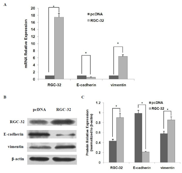 RGC-32 overexpression promotes EMT of BxPC-3 cells . BxPC-3 cells were transiently transfected with RGC-32 plasmid <t>(pcDNA3.1/</t> myc -His C-RGC32) or empty vector (pcDNA3.1/ myc -His C). 72 h after transfection, qPCR (A) and western blot (B and C) were performed to examine the expression of RGC-32, E-cadherin and vimentin at mRNA and protein levels respectively. β-actin was used as an internal control. * P