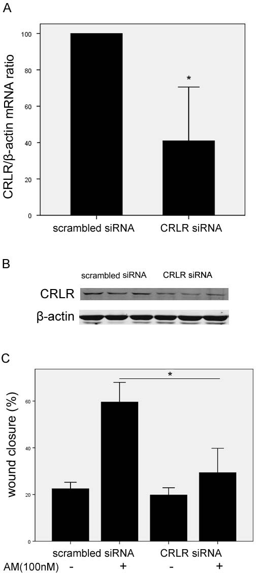 Down-regulation of <t>CRLR</t> expression in HO8910 cells inhibited influence of exogenous AM on cell migration . Reduced CRLR mRNA expression (A) and protein expression (B) were determined by real-time PCR analysis or western blot in CRLR <t>siRNA</t> transfected cells, compared with scrambled siRNA transfected cells. After cells were transfected by CRLR siRNA, the effect of AM on cells migration was decreased consequently (C).