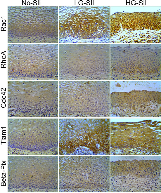 Expression of Rho-GTPases and Rho-GEFs in cervical epithelium without squamous intraepithelial lesions, low-grade squamous intraepithelial lesions (L-SIL), and high-grade squamous intraepithelial lesions (H-SIL) . Representative images of immunohistochemical analysis of Rac1, RhoA, Cdc42, Tiam, and beta-Pix expression. Magnification: 40 ×.