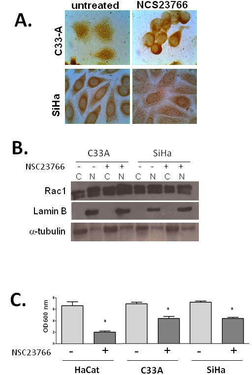 Effect of the Rac1 chemical inhibitor NSC23677 on the subcellular localization of Rac1, and on cell proliferation . A . Representative images of immunocytochemical analysis for Rac1 in C33A and SiHa cells, treated or not with the Rac1 inhibitor NSC23677. B . Detection of Rac1 in cytoplasmic ( C ) and nuclear (N) proteins from HaCat, C33A and SiHa cells treated or not with the Rac1 inhibitor NSC23677. Lamin B was used as a nuclear marker and α-tubilin is a cytoplasmic marker. C . Results from crystal violet cell proliferation assays on HaCat, C33A and SiHa cells treated or not with the Rac1 inhibitor NSC23766 for 48 h. Data shown are average optical density values plus standard deviation of experiments performed in triplicate.