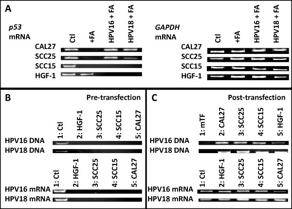 DNA and mRNA analysis . A) RT-PCR performed on total RNA extracted from cells at d1 (24 hr) following FA administration [400 μg/mL] revealed little change in p53 mRNA transcription in HGF-1 cells, but decreased transcription in CAL27, SCC15, and SCC25 cells. HPV16 and HPV18 had little effect on FA-induced changes in p53 transcription in CAL27 and SCC25 cells, although decreases were observed in both SCC15 and HGF-1 cells. B) PCR screening from DNA confirmed HPV16 and HPV18 DNA was present in the control cell lines, CaSKi (HPV16) and GH354 (HPV18) cervical adenocarcinomas, but not HGF-1, SCC25, SCC15 or CAL27. RT-PCR screening also confirmed the presence of HPV-specific mRNA in the control, but not experimental, cell lines. C) DNA screening post-transfection confirmed the presence of HPV-specific DNA in CAL27, SCC25, SCC15 and HGF-1, but not mock transfectants (mTF); RNA screening confirmed production of HPV-specific mRNA at levels similar to control cell lines.