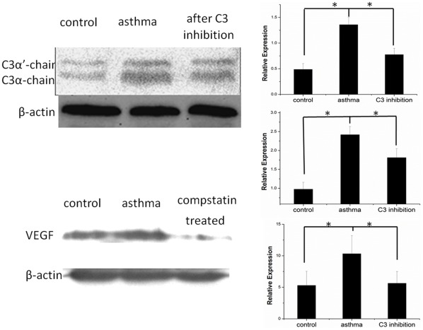 Western blot of C3 and VEGF. Western blot showing C3α'-chain, C3α-chain and VEGF expression in the RPE/choroid layer of rats without asthma, rats with asthma and rats with asthma treated with compstatin 14 days after laser photocoagulation. This experiment was repeated three times.