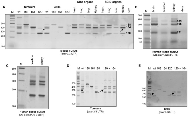 A general RT-PCR approach using primers to exon 3 or 4 and 3'UTR failed to detect VEGFxxxb isoforms in mouse and human cDNA extracts respectively. A , PCR products corresponding to VEGF188 (474 bp), VEGF164 (402 bp), VEGF164/120 heteroduplex (arrowed) and VEGF120 (270 bp) are evident in the panel of mouse cDNAs amplified using the 3′UTR reverse primer and a forward primer to exon 3. B C , PCR products corresponding to VEGF189 (371 bp), VEGF165 (299 bp) and VEGF121 (167 bp) are evident in the commercial human tissue cDNAs amplified using the 3′UTR reverse primer (DB 3'UTR) and a forward primer to exon 4 (DB exon4). D , Amplification of the heteroduplex species (arrowed) a lso occurred when VEGF164 and VEGF120 tumour cDNAs were pooled and analysed by RT-PCR using exon3/3'UTR primers (lanes labelled 120+164). E , The same heteroduplex species was generated when cDNAs from VEGF164 and VEGF188 expressing fibrosarcoma cells were pooled and amplified as above (lanes labelled 120+164). M corresponds to a 100 bp ladder, whilst -tem represents a control PCR reaction in which water was used instead of cDNA template. The Figure contains data we published previously [25] .