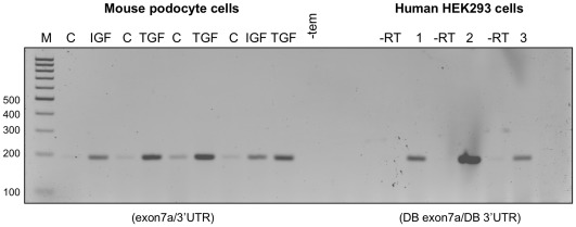 Effect of IGF-1 and TGFβ-1 on expression of VEGF isoforms in mouse podocytes. Cell lysates were prepared from untreated control (C) podocyte cells or cells treated with either 100 nM IGF-1 (IGF) or 1 nM TGFβ-1 (TGF) for 12 hours in serum free media. Results from three independent experiments are shown. RT-PCR using general primers designed to simultaneously amplify both VEGFxxx and VEGFxxxb isoforms (exon7a/3'UTR) revealed only VEGFxxx (194 bp). Qualitative assessment of the PCR products suggests that treatment with either growth factor increased VEGFxxx expression. The same RT-PCR strategy using three different extracts (1, 2, 3) from HEK 293 cells similarly revealed only VEGFxxx (194 bp). (-tem) corresponds to reactions containing water instead of cDNA. (-RT) corresponds to reactions containing water instead of reverse transcriptase.