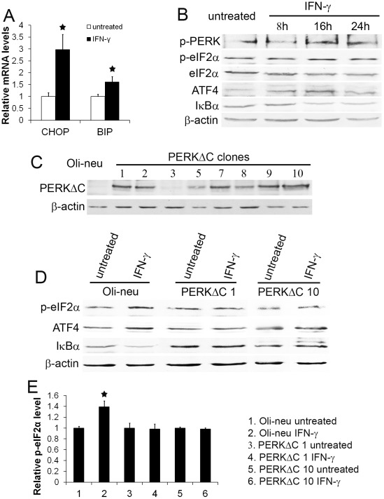 Enforced expression of PERKΔC diminished IFN-γ-induced activation of PERK signaling. A. Oli-neu cells were treated with 100 U/ml IFN-γ for 24 hrs. Real-time PCR analysis showed that IFN-γ treatment significantly increased the expression of CHOP and BIP in the cells. B. The cells were treated with 100 U/ml IFN-γ for 8 hrs, 16 hrs, or 24 hrs. Western blot analysis showed that the levels of p-PERK, p-eIF2α, and ATF4 in Oli-neu cells treated with 100 U/ml IFN-γ for 16 hrs were elevated compared to the untreated cells. Moreover, IFN-γ reduced the level of IκBα in Oli-neu cells after 16 hrs of treatment. C. Oli-neu cells were transfected with pBabe-PERKΔC vector encoding Myc epitope-tagged PERKΔC. Immunoblotting for Myc showed that stably transfected cell lines expressed various levels of PERKΔC. PERKΔC 1 and 10 cells expressed high level of PERKΔC. D. The cells were treated with 100 U/ml IFN-γ for 16 hrs. Western blot analysis showed that enforced expression of PERKΔC blocked IFN-γ-induced eIF2α phosphorylation and ATF4 upregulation in PERKΔC 1 and 10 cells. Western blot analysis also showed that enforced expression of PERKΔC diminished IFN-γ-induced reduction of IκBα level in PERKΔC 1 and 10 cells. E. Densitometry analysis of western blot results showed that IFN-γ treatment significantly increased the level of p-eIF2α in Oli-neu cells, but did not affect p-eIF2α level in PERKΔC 1 and 10 cells. The experiments were repeated at least three times, error bars represent standard deviation, asterisk p