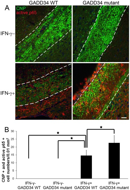 GADD34 inactivation increased IFN-γ-induced NF-κB activation in oligodendrocytes in IFN-γ-expressing transgenic mice. A, B. CNP and active p65 double immunostaining showed that the immunoreactivity of active p65 was undetectable in oligodendrocytes in the corpus callosum in control IFNγ ^ GADD34 WT mice and IFNγ ^ GADD34 mutant mice. The immunoreactivity of active p65 became detectable in a number of oligodendrocytes in the corpus callosum of IFNγ+GADD34 WT mice, and the number of active p65 positive oligodendrocytes was further increased in the corpus callosum of IFNγ+GADD34 mutant mice. The experiments were repeated at least three times, error bars represent standard deviation, asterisk p