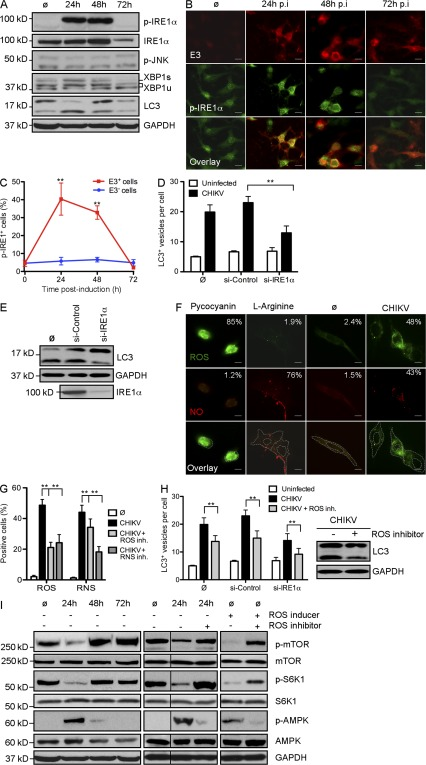 CHIKV-induced autophagy is regulated by ER and oxidative stress. (A–C) WT MEFs were infected with CHIKV at indicated time points and Western blotting was performed to detect phosphorylation of IRE1α (p-IRE1α) and JNK (p-JNK) as well as the formation of spliced form of <t>XBP1</t> (XBP1s) and the conjugation of LC3 (LC3-II). (A) IRE1α and GAPDH were also followed to control protein expression and loading. Similar results were observed in two independent experiments. (B) Immunofluorescence was performed using anti-pIRE1α and anti-E3 antibody. Bars, 15 µm. (C) The number of cells positive for pIRE1α in the E3 + (infected cells) and E3 − (uninfected cells) populations is depicted. Data shown represent mean ± SEM for triplicate samples of > 100 cells per experimental condition. Similar results were observed in three independent experiments. (D and E) WT MEFs were pretreated with control siRNA or siRNA against IRE1α for 3 d followed by infection with CHIKV for 24 h at MOI 1. The number of LC3 punctas per cell and the amount of LC3-II are depicted. Data shown represent mean ± SEM for triplicate samples of > 100 cells per experimental condition. Similar results were observed in three independent experiments. (F and G) WT MEFs were incubated for 24 h in control media (ø) or in the presence of CHIKV (MOI = 1). (F) Immunofluorescence was performed using an ROS/RNS detection kit that specifically stains oxygen species and free NO. As positive controls for ROS or RNS induction, WT MEFs were incubated for 5 h with pycocyanin and l -arginine, respectively. Bars, 10 µm. (G) Percentage of cells containing ROS or NO among infected with CHIKV and/or pretreated with specific inhibitor of ROS and RNS as indicated is depicted. Data shown represent mean ± SEM for triplicate samples of > 100 cells per experimental condition. Similar results were observed in two independent experiments. (H) WT MEFs or cells pretreated with siRNA against IRE1α for 3 d were infected with CHIKV for 24 h in pre