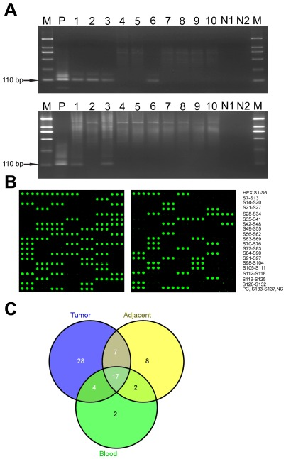 Detection of the JCV T-antigen sequence in samples from CRC patients. (A) The 110 bp fragment was amplified from DNA isolated from matched samples of colorectal cancer (upper) and normal tumor adjacent tissues (lower) with nested PCR. M: DL 2,000 DNA Marker (TaKaRa); P: positive control; N1: first-round negative control; N2: second-round negative control. (B) Images from JCV nested-PCR product arrays. Nested-PCR products of tumor tissues (left) and normal tumor adjacent tissues (right) were spotted onto surfaces of aminosilane slides as three replicates, hybridized with TAMRA-labeled oligonucleotide probe and finally visualized by AXON scanner. (C) The numbers of JCV-positive samples in 137 matched pairs of tumor tissue, non-cancerous adjacent tumor tissue and PB samples from CRC patients.