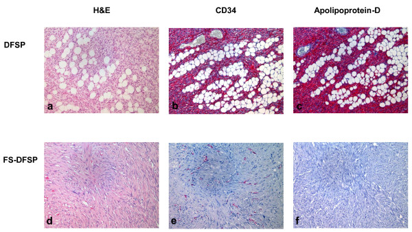 Histology . Bland appearing spindle cells arranged in monotonous storiform pattern, infiltrating between lobules of fat in an honeycomb pattern in DFSP (H E; panel a). <t>CD34</t> (panel b) and Apolipoprotein-D (panel c) expression in DFSP. Malignat fibrous histicitoma-like areas in DFSP (DFSP-FS) (panel d). Loss of expression of CD 34 (panel e) and Apolopoprotein-D (panel f).